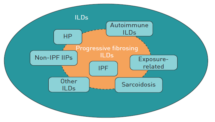 From Cottin 2019 ERS Reviews: Types of interstitial lung disease (ILD) that may be associated with a progressive fibrosing phenotype. HP: hypersensitivity pneumonitis; IPF: idiopathic pulmonary fibrosis; IIPs: idiopathic interstitial pneumonias.
